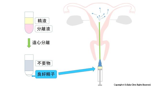 人工授精の治療方法