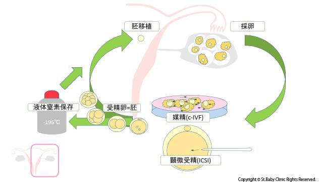 高度不妊治療のプロセス