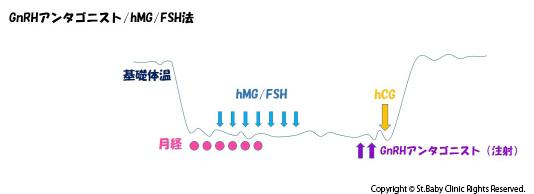 GnRHアンタゴニスト・hMG/FSH法