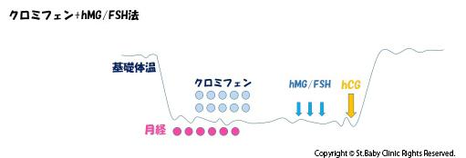 クロミフェン+hMG/FSH法