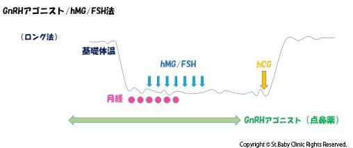 GnRHアゴニスト・hMG/FSH法(ロング法)