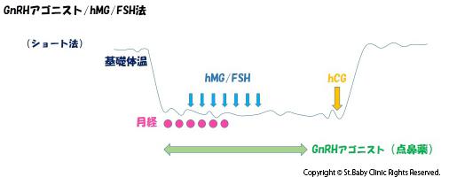 GnRHアゴニスト・hMG/FSH法(ショート法)