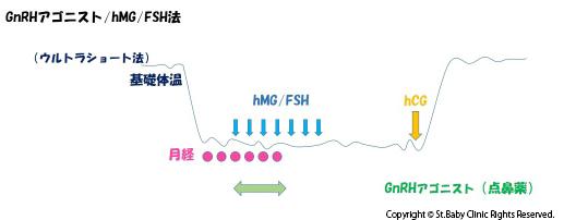 GnRHアゴニスト・hMG/FSH法(ウルトラショート法)