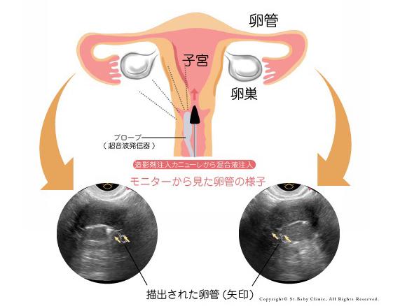 卵管造影検査