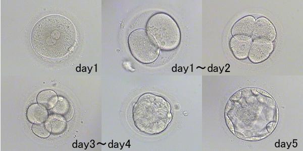 受精卵の成長001