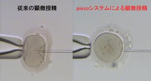 透明帯穿刺時の比較